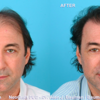 Want A Great Hair Transplant? Be Realistic And Do Your Homework!