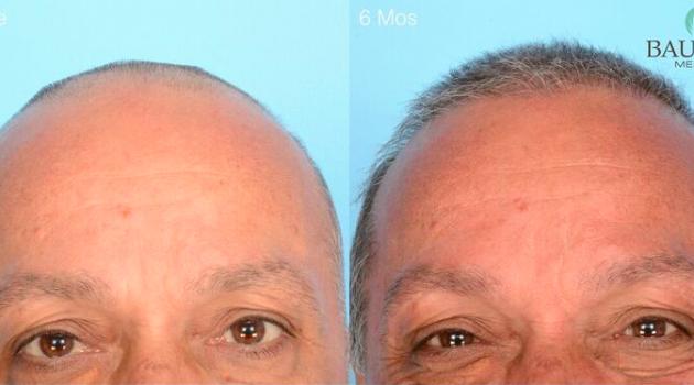 Frank's ARTAS Hair Transplant Experience